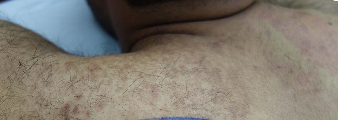 thermolysis-galvanic1a
